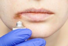 Герпес на губах: женщина с холодом и вирусом герпеса расмотрена специалистом по дерматолога и инфекционного заболевания стоковая фотография