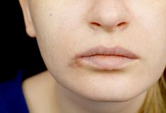 Герпес на губах: женщина с холодом и вирусом герпеса расмотрена специалистом по дерматолога и инфекционного заболевания стоковое изображение rf