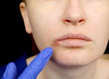 Герпес на губах: женщина с холодом и вирусом герпеса расмотрена специалистом по дерматолога и инфекционного заболевания стоковая фотография rf