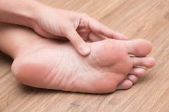 Женщина страдая от мозоли на ее подошве ноги стоковые фотографии rf