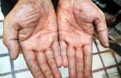 Заболевание псориаза на руке человека стоковое изображение rf