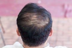 Закройте вверх по выпадению волос, утончая волосам и вопросу скальпа Обработка выпадения волос голова с симптомами потери Облысел стоковое изображение