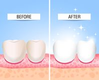 Her teeth sick and a healthy. Visual aid for students, dentists, clinic patients. Defeat is a source of destruction in the teeth. The concept of healthy and stock illustration