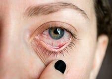 Ð-¡ onjunctivitis pinkeye Frau ` s Auge Augenkrankheit Oben geschlossen lizenzfreie stockfotografie