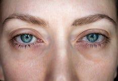 Ð¡onjunctivitis. Pinkeye. Woman`s eye. Eye disease. Closed up royalty free stock photo