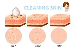 Шаги чистки кожи бесплатная иллюстрация