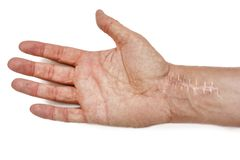 Шрам со стежками на запястье после хирургии Трещиноватость косточек рук изолированных на белой предпосылке стоковые изображения