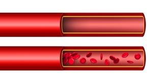 Творческая иллюстрация подачи потока клеток крови артерии, микробиологический медицинский изолированный сосуд вектора эритроцита бесплатная иллюстрация