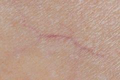 Фото макроса вен на человеческой коже, Microvarices стоковое изображение rf