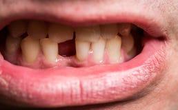 Человек без одного переднего зуба Плохое зубоврачебное здоровье, отсутствие зубов, отсутствие фторида, размывания зуба отсутствие стоковое фото