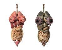 Órganos internos completos femeninos, healty y unhealty. Fotografía de archivo libre de regalías