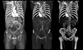 Órganos internos en la tomografía computada Imágenes de archivo libres de regalías