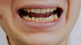 Öffnen Sie Mann ` s Mund mit den gekrümmten oder der Kurven gelben Zähnen, die zum Rauchen passend sind stock video footage