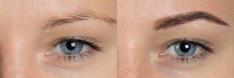 Öga - krön för efter korrigering arkivbild