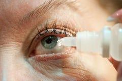 Ögat med bindhinneinflammation ingjutas med terapeutiska droppar Arkivbild
