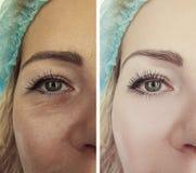 Ögon av en contrascontrast t för tillvägagångssätt för resultat för regenerering för kvinnaskrynklapatient före och efter royaltyfri fotografi