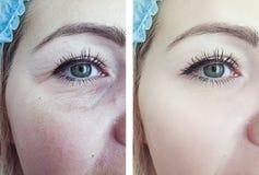 Ögon av en contrascontrast t för tillvägagångssätt för resultat för regenerering för kvinnaskrynklor före och efter royaltyfri fotografi