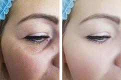 Ögon av en contrascontrast t för tillvägagångssätt för resultat för regenerering för kvinnaskrynklor före och efter royaltyfri foto
