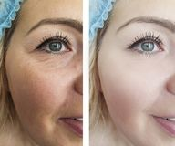 Ögon av en kontrast för tillvägagångssätt för resultat för kvinnaskrynklor före och efter fotografering för bildbyråer