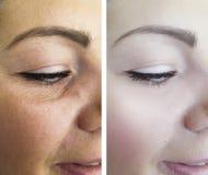 Ögon av en kontrast för tillvägagångssätt för resultat för regenerering för kvinnaskrynklor före och efter arkivfoto