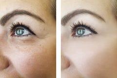 Ögon av skrynklor för en kvinna före och efter, tillvägagångssätt som bloating royaltyfri foto