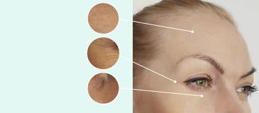 Ögon av skrynklor för en kvinna som före och efter åldras collage för borttagning för resultat för regenereringskillnadbegrepp, t royaltyfri foto