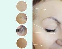 Ögon av skrynklor för en kvinna som före och efter åldras regenereringborttagningscollage, tillvägagångssätt royaltyfri bild