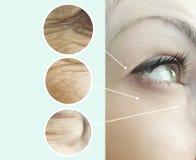 Ögon av skrynklor för en kvinna som före och efter åldras regenereringlyftande borttagningscollage, tillvägagångssätt arkivbild