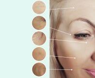 Ögon av skrynklor för en kvinna som före och efter lyfter borttagningscollage, tillvägagångssätt royaltyfria foton