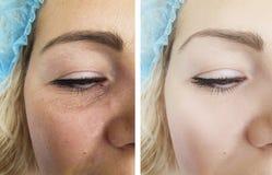 Ögon av skrynklor för en kvinna som före och efter lyfter för regenereringresultat för patient contrascontrast t för tillvägagång arkivfoto