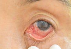 Ögon med kemiska allergier Arkivfoto