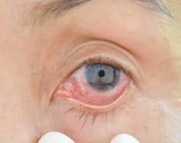 Ögon med kemiska allergier royaltyfri bild