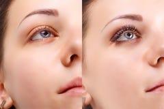 Ögonfransförlängning Jämförelsen av kvinnlign synar före och efter arkivfoto