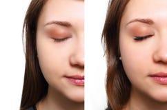 Ögonfransförlängning Jämförelsen av kvinnlign synar före och efter royaltyfri foto