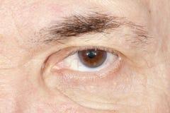 Ögonsjukdom Arkivfoton