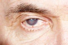 Ögonsjukdom Arkivbild