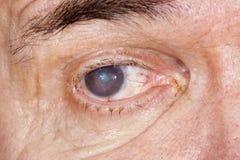 Ögonsjukdom Royaltyfri Fotografi
