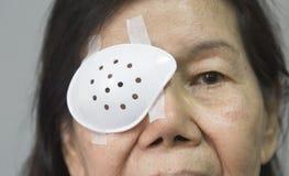 Ögonsköldbeläggning efter starrkirurgi arkivfoto