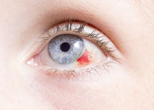 Ögonskada fotografering för bildbyråer