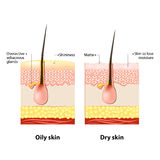 Ölige u. trockene Haut vektor abbildung