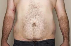 Övervikt mans magen Arkivbilder