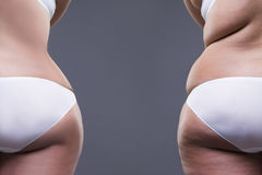 Överviktig kvinna med fettben och bakdelar, för efter begrepp, kvinnlig kropp för fetma, bakre sikt royaltyfria foton