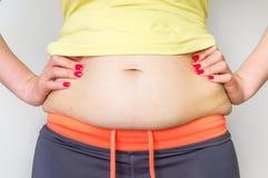 Överviktig kvinnakropp med fett på höfter - fetmabegrepp arkivfoton