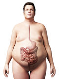 Överviktig man - digestivkexsystem Arkivfoton