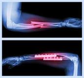 Övrebild: Bryta ulnar och radien (underarmenbenet), lägre bild: Den fungerades och inre fast med plattan och skruven Fotografering för Bildbyråer
