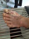 úlcera del pie Fotos de archivo