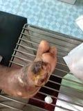 úlcera del pie Foto de archivo libre de regalías