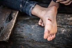 Úlceras del pie imagenes de archivo