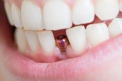 Único implante do dente Imagens de Stock