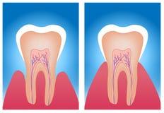 Überempfindliche Zähne und normale Zähne Stockfotografie